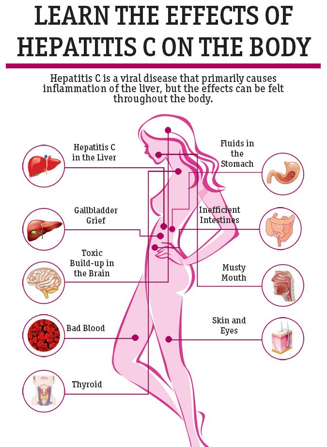 hep c symptoms female