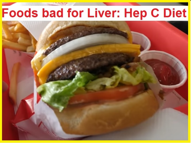 Fast foods bad for liver Hep C
