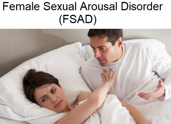 The-causes-of-psychological-female sexual arousal disorder FSAD