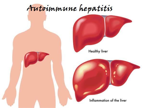 autoimmunehepatitis